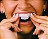 kit blanchiment dents4